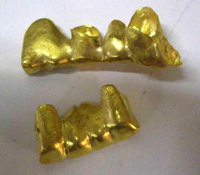 Dents en or